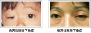 先天性眼瞼下垂と後天性眼瞼下垂